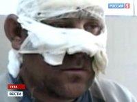 В Туве у спасшегося парашютиста обожжено около 25% тела