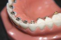 Ортодонтия и ее особенности