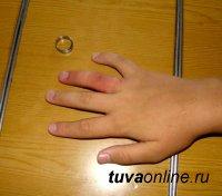 Подросток надел кольцо не по размеру, а снимать его пришлось спасателям