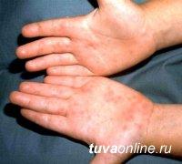 Внимание! Oтмечен 8-кратный подъем случаев заражения энтеровирусной инфекцией