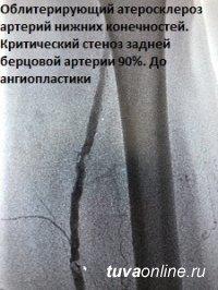 В Туве при помощи ангиопластики и стентирования врачи спасли пациентов от ампутации