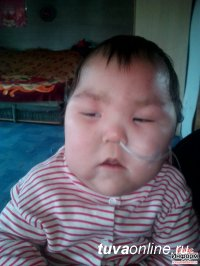 Однолетней Саглай Куулар нужна наша помощь!