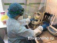 В Туве к 3 февраля за сутки провели 376 лабораторных исследований на COVID-19