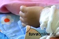 В Туве 10-месячный малыш опрокинул на себя чайник с кипятком